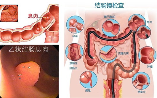"""肠道内的隐藏""""炸弹""""——肠息肉怎么检查"""