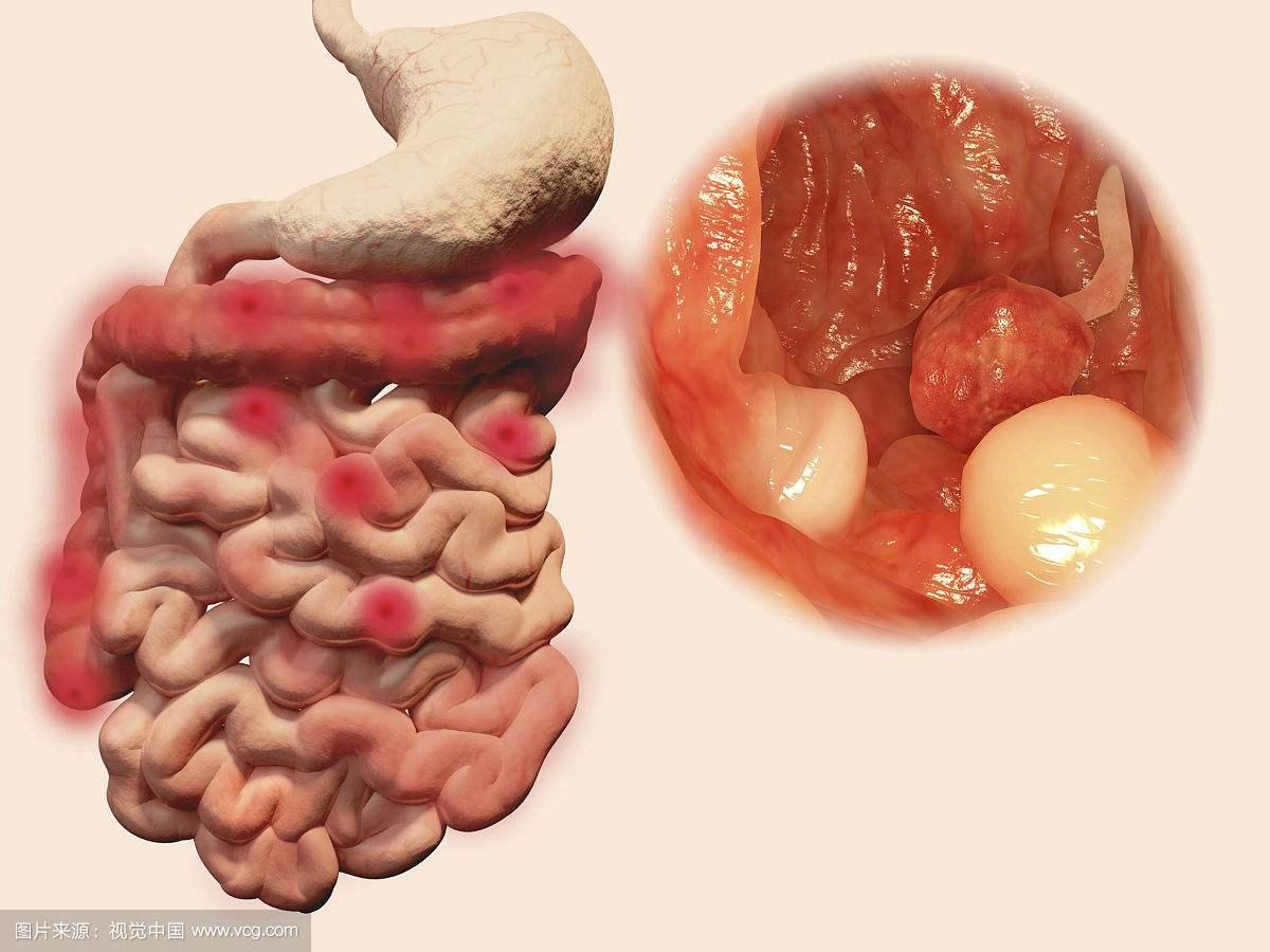 南宁肠道息肉怎么发现和治疗