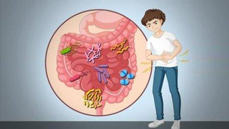 直肠炎要如何治疗好
