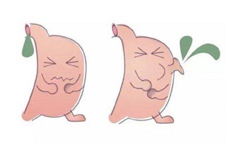 胆汁反流性胃炎怎么治疗