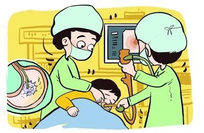 做胃镜检查要花多少钱