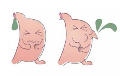 胆汁反流性胃炎怎么治疗才能有好的效果呢